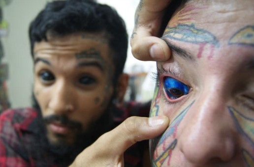Eye-ball tattoing o tatuaje corneal